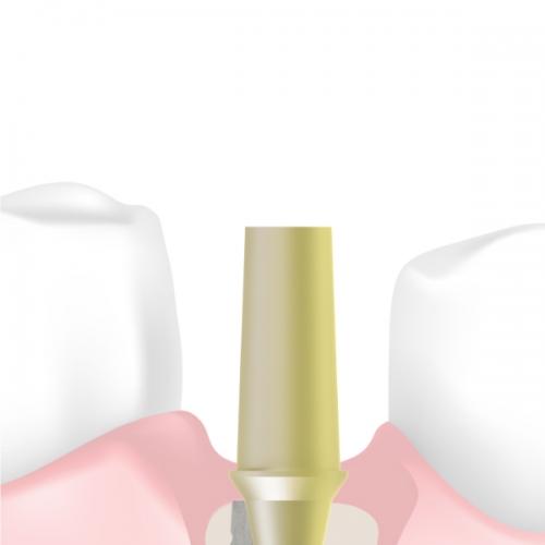 Prótesis cementada (CI)