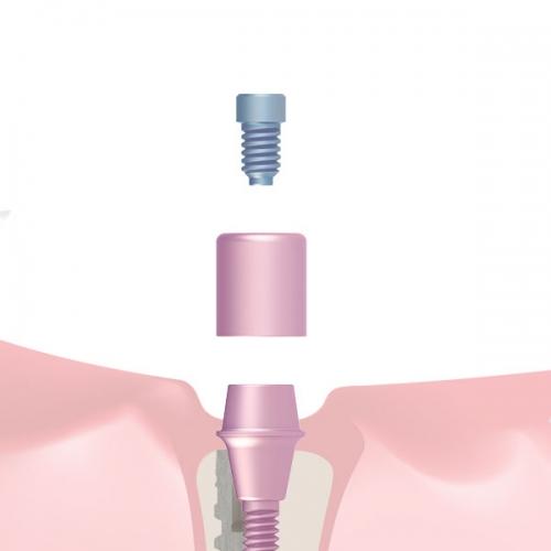 Prótesis atornillada (CI)