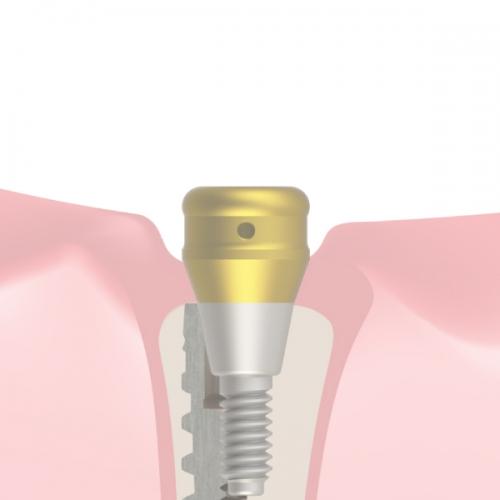 Prótesis removible (CI)