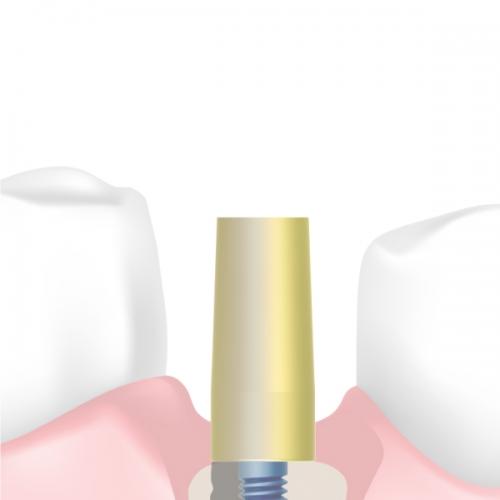Prótesis cementada (CE)
