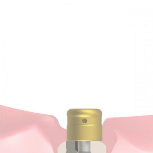 Prótesis removible (CE)